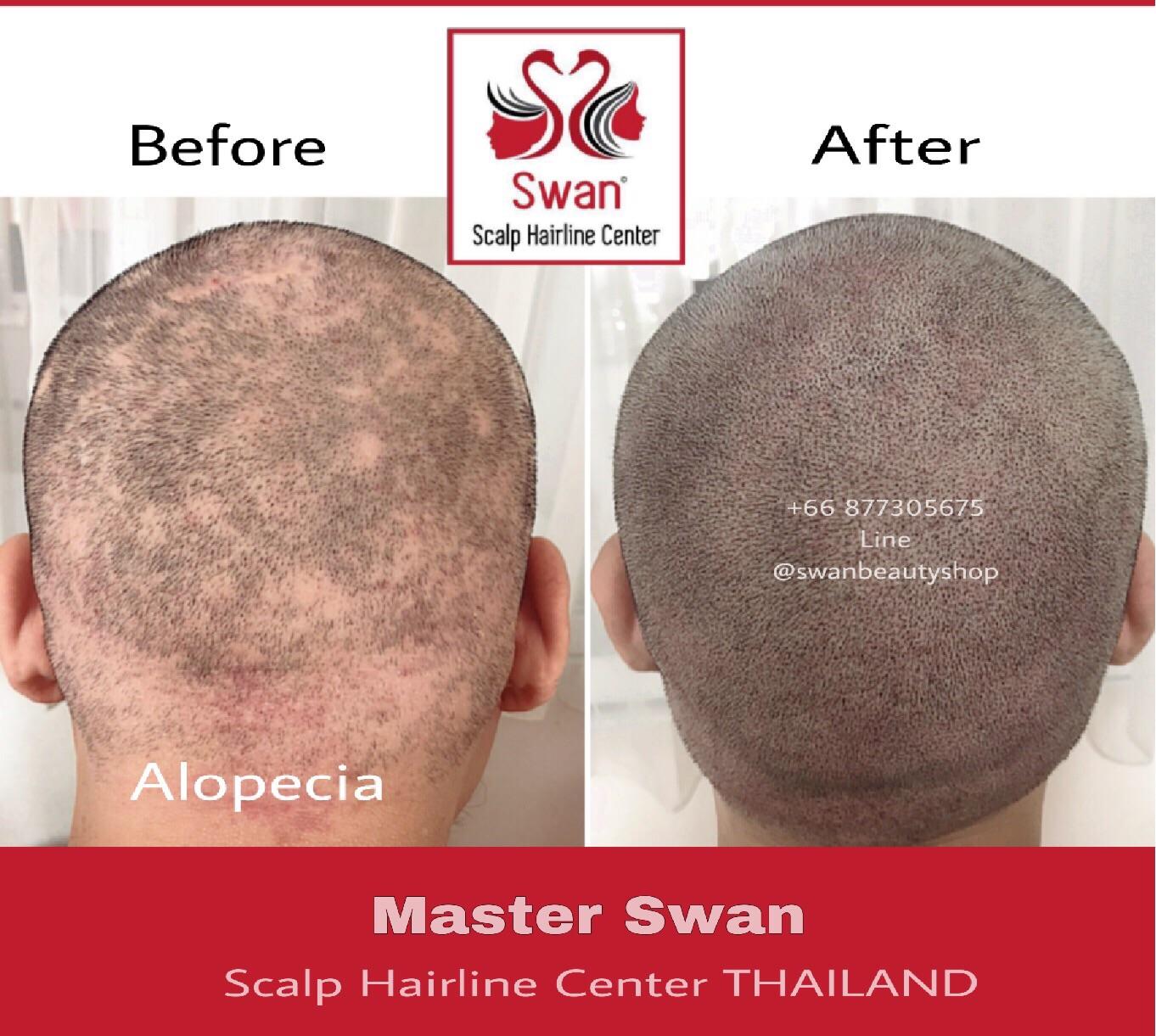 10. Alopecia Areata