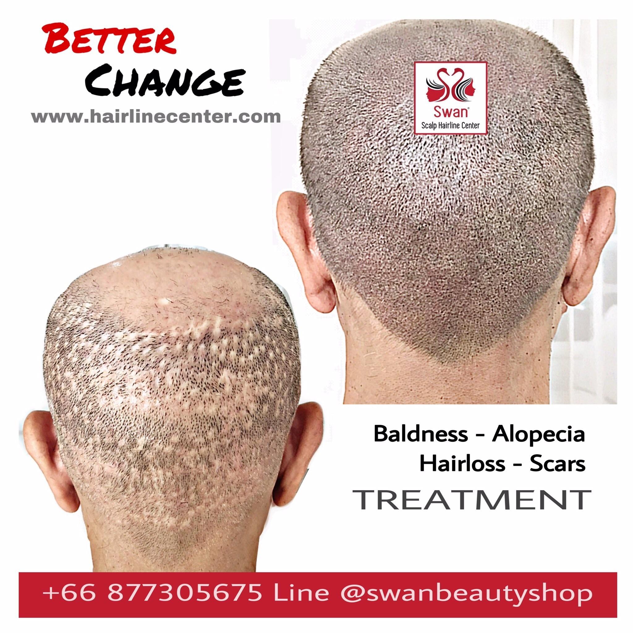 5. Alopecia Areata