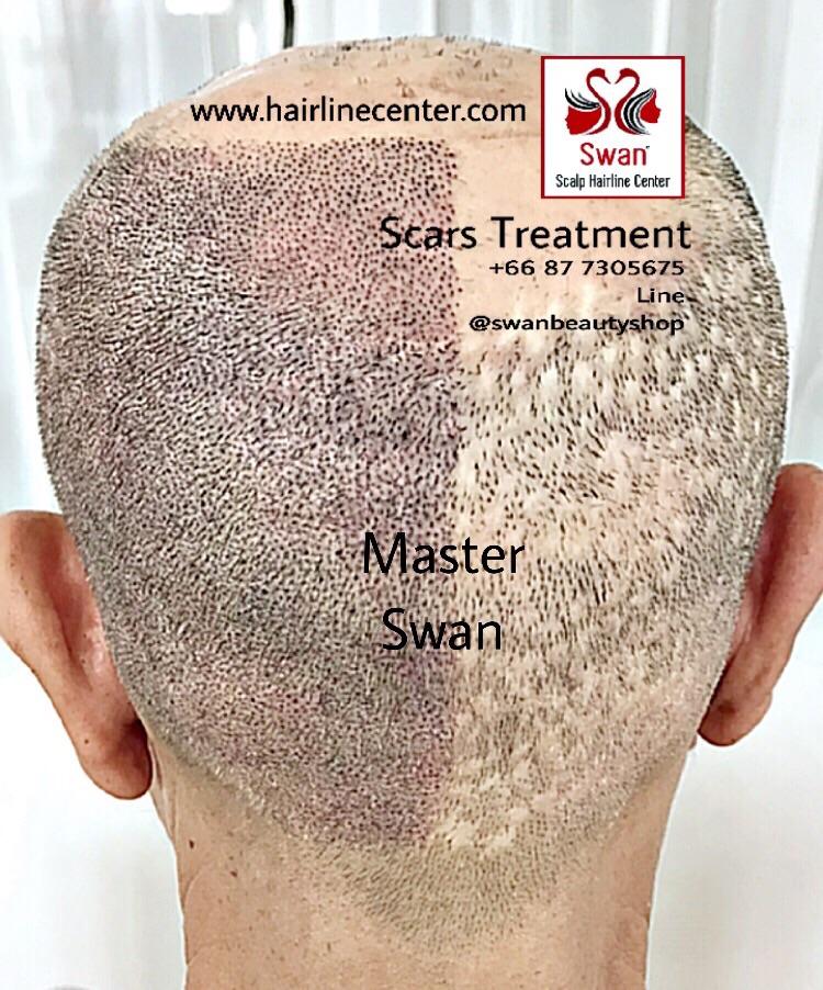 9. Alopecia Areata