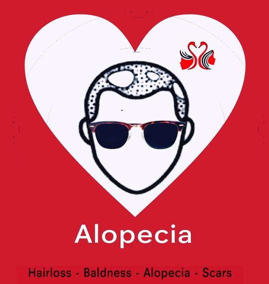 Alopecia.HC