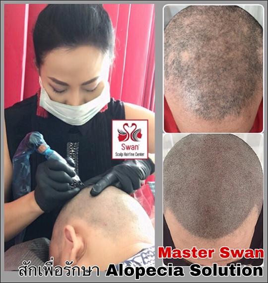 01. โรคผมร่วง Alopecia