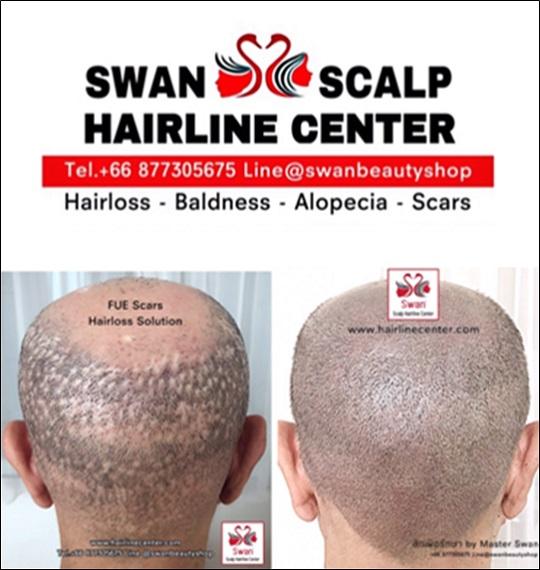 02. โรคผมร่วง Alopecia