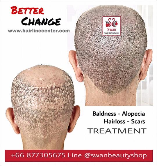 03. โรคผมร่วง Alopecia