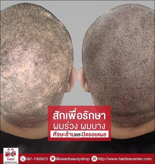 04. โรคผมร่วง Alopecia