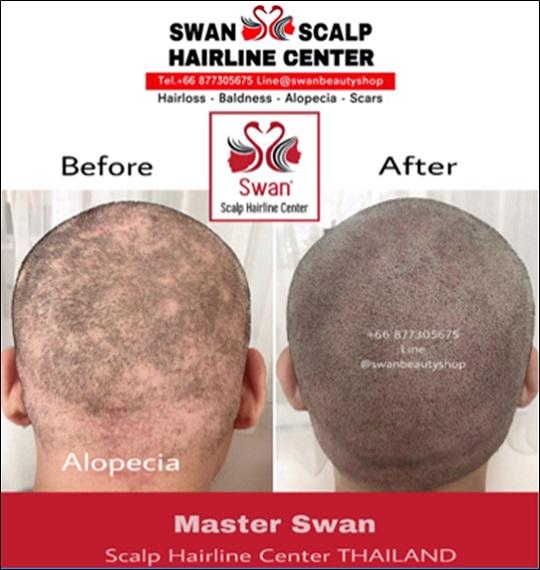 09. โรคผมร่วง Alopecia