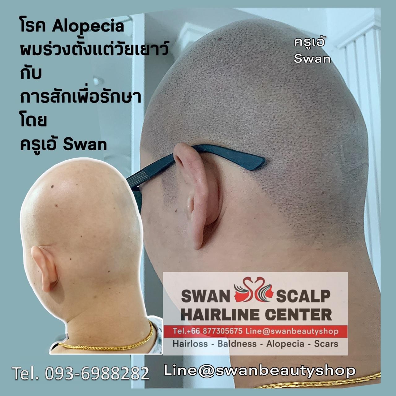 สักเพื่อรักษาโรค Alopecia